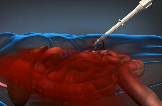 Espuma para hemorragias internas
